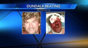 Dundalk Man Beaten 2015